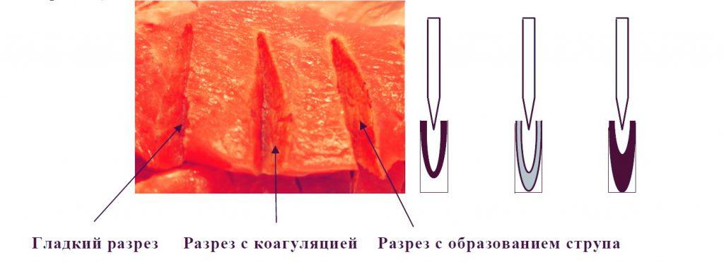 Высокочастотная хирургия резка