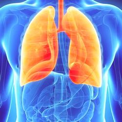 Лечение тяжелой пневмонии