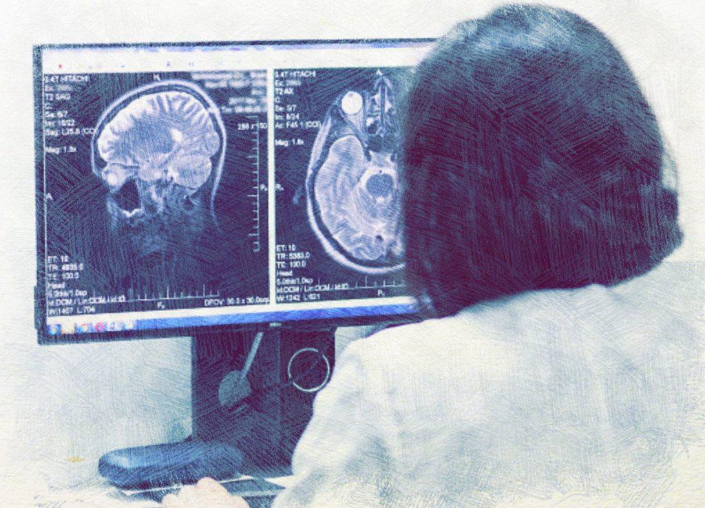 Магнитно резонансная томография головного мозга
