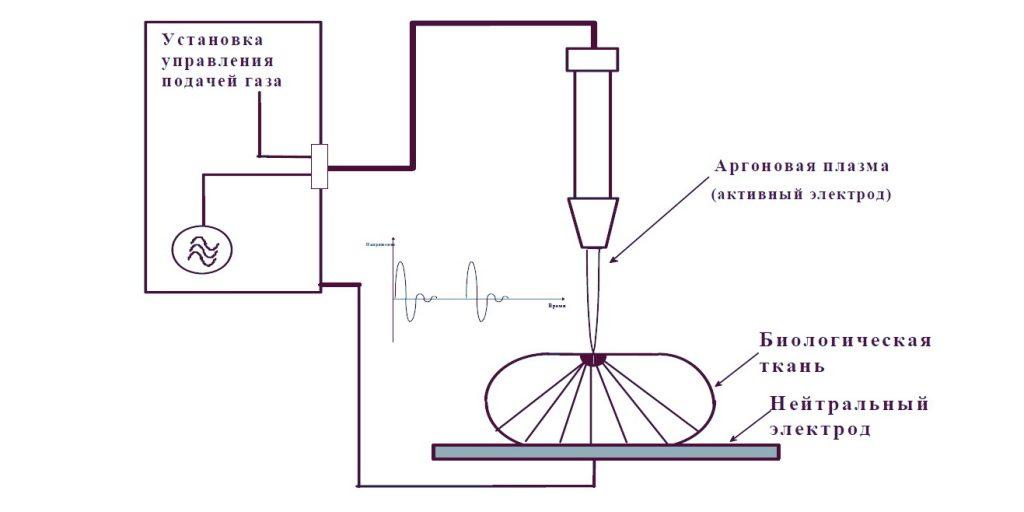 Принцип аргоновой коагуляции