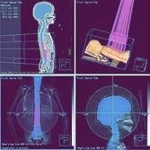 Протонная терапия Pinnacle 3