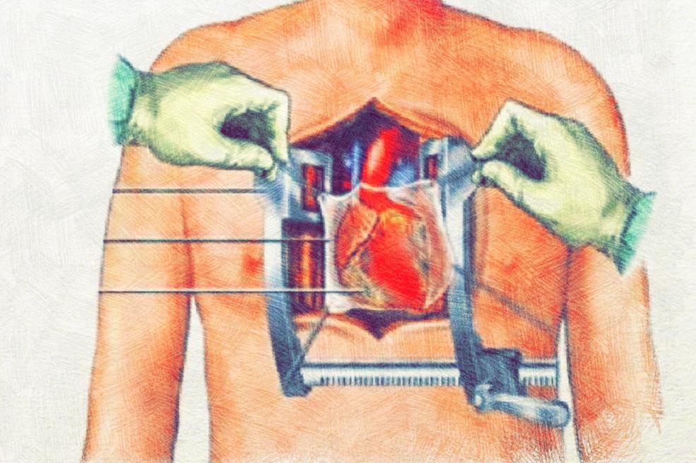 Раскрытие грудной клетки
