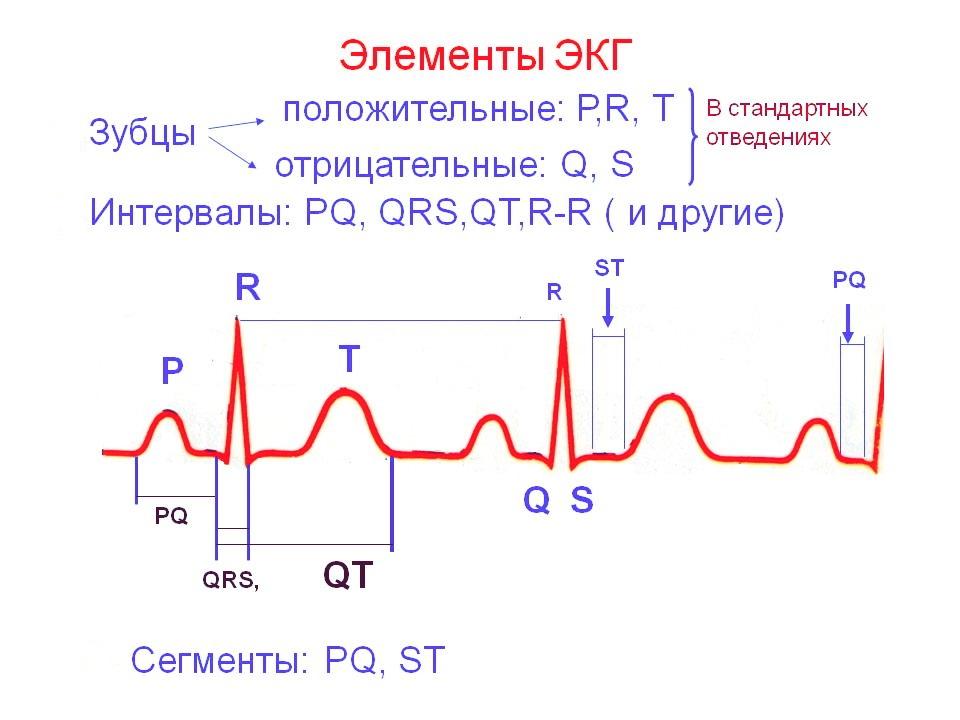 Расшифровка ЭКГ