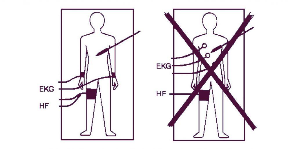 ЭКГ электроды при ВЧ хирургии