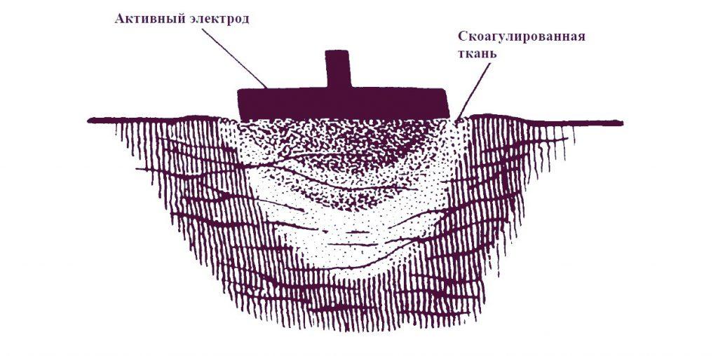 Высокочастотная хирургия глубокая коагуляция