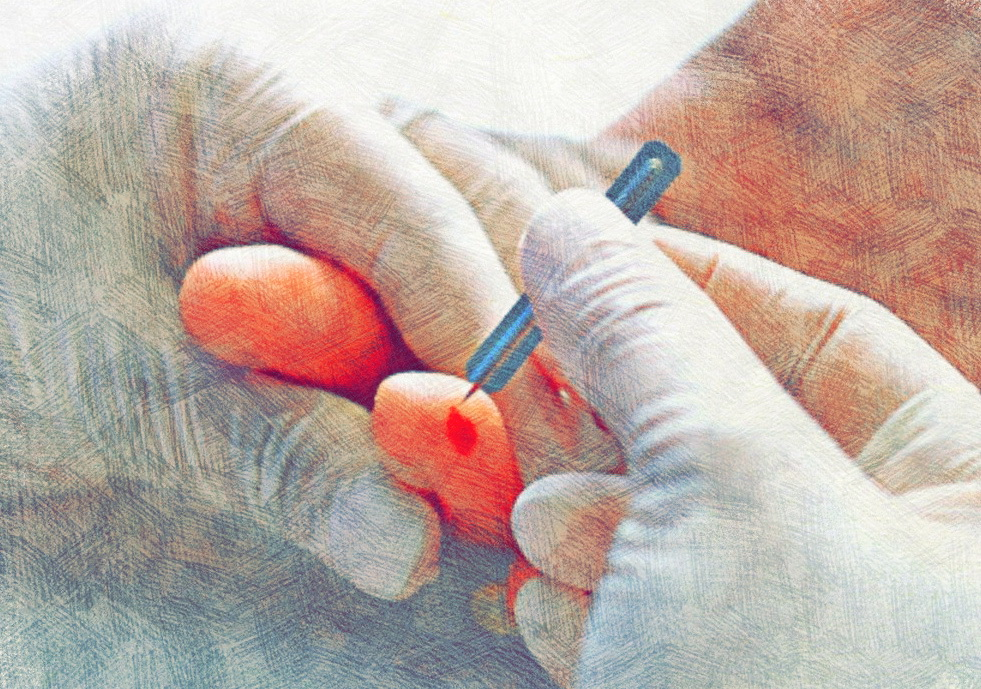 забор крови из пальца