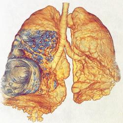 хроническая эмфизема легких