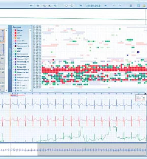 Экран полоски ритма medilog DARWIN