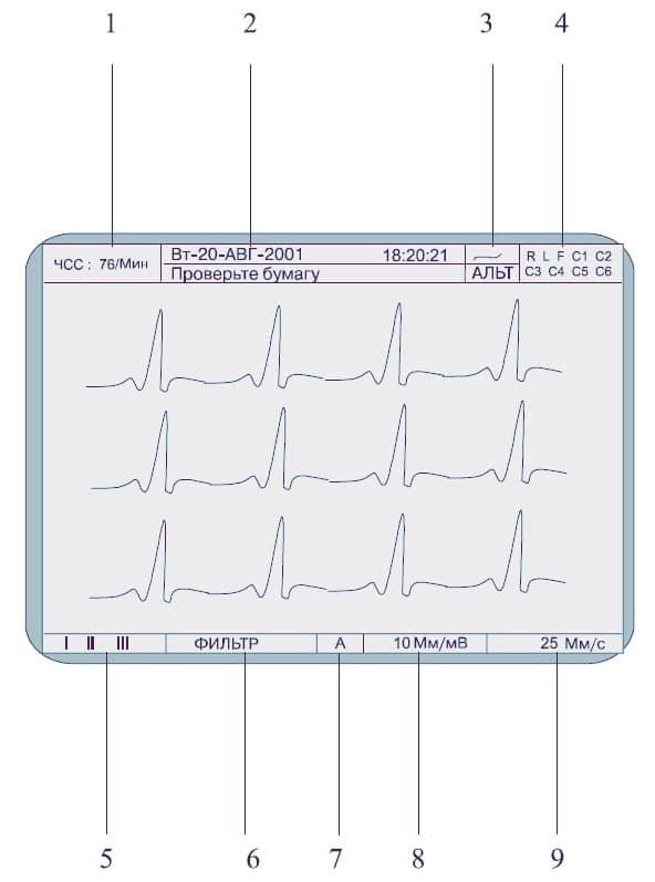 Экран Schiller Cardiovit AT 2 Plus