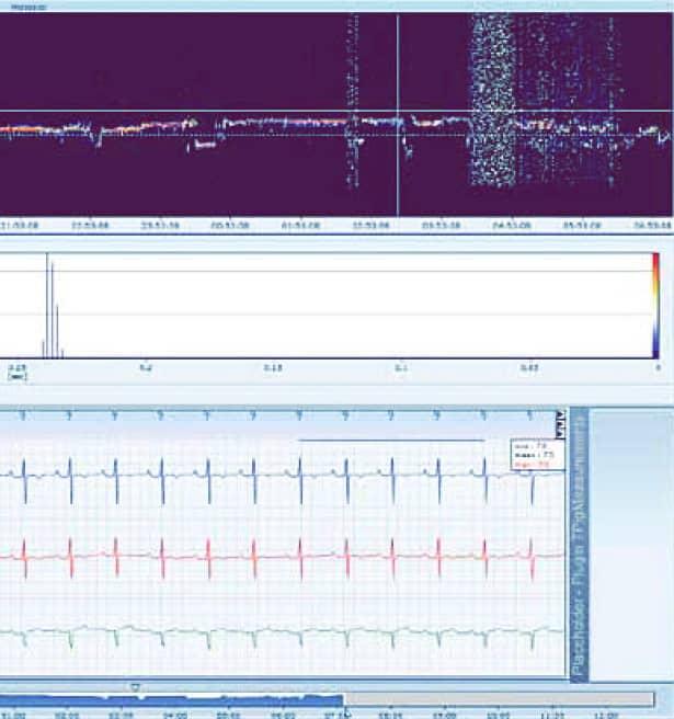 Спектральный анализ и гистограмма